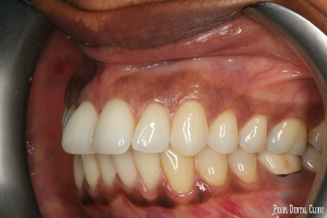 Invisalign buccal left before