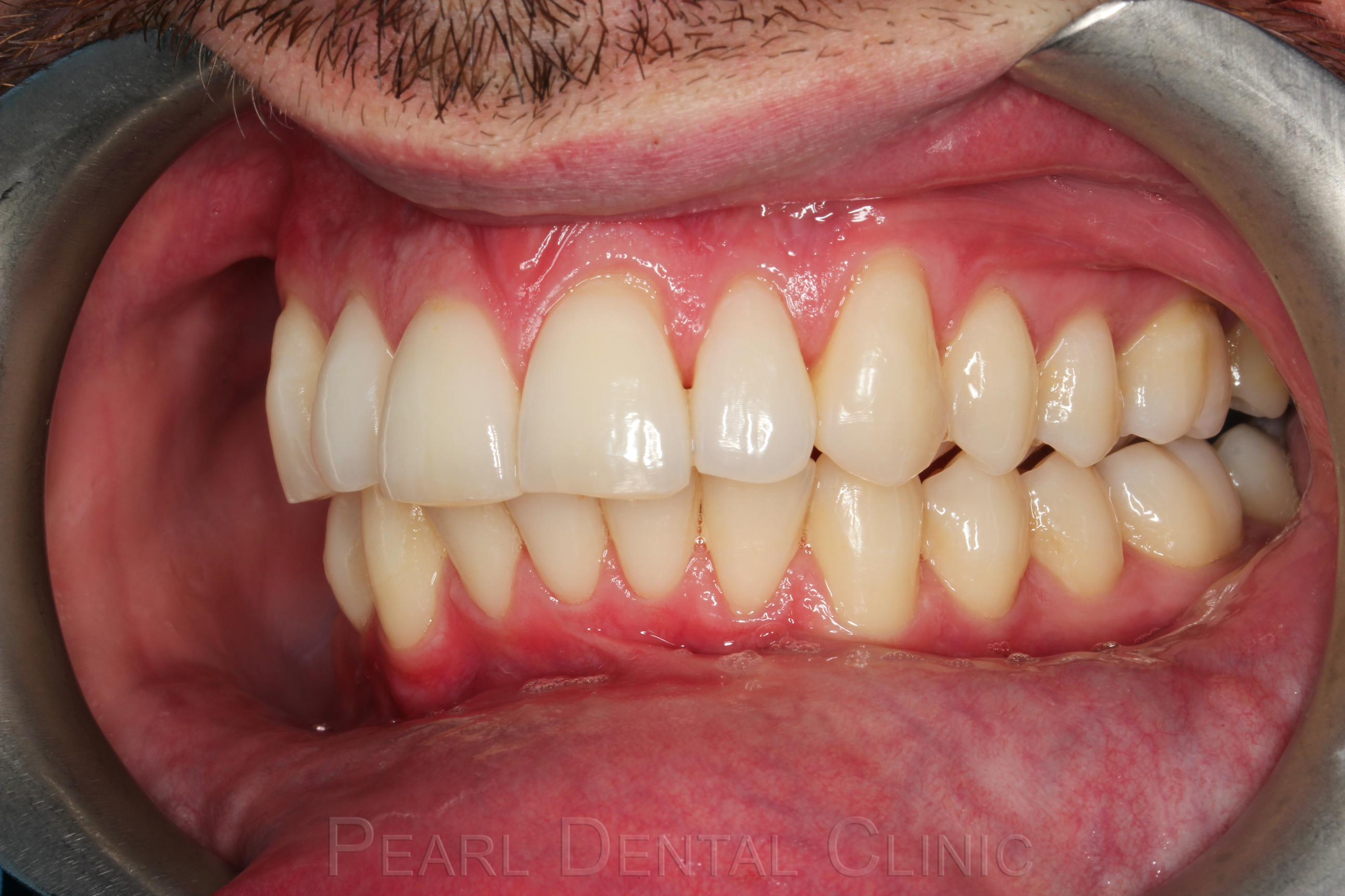 Invisalign buccal_left after