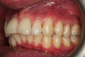 Invisalign buccal_left before