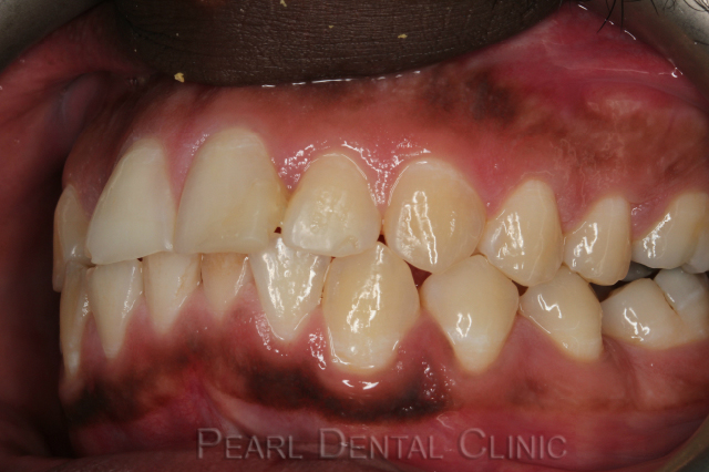 Invisalign_buccal_left before