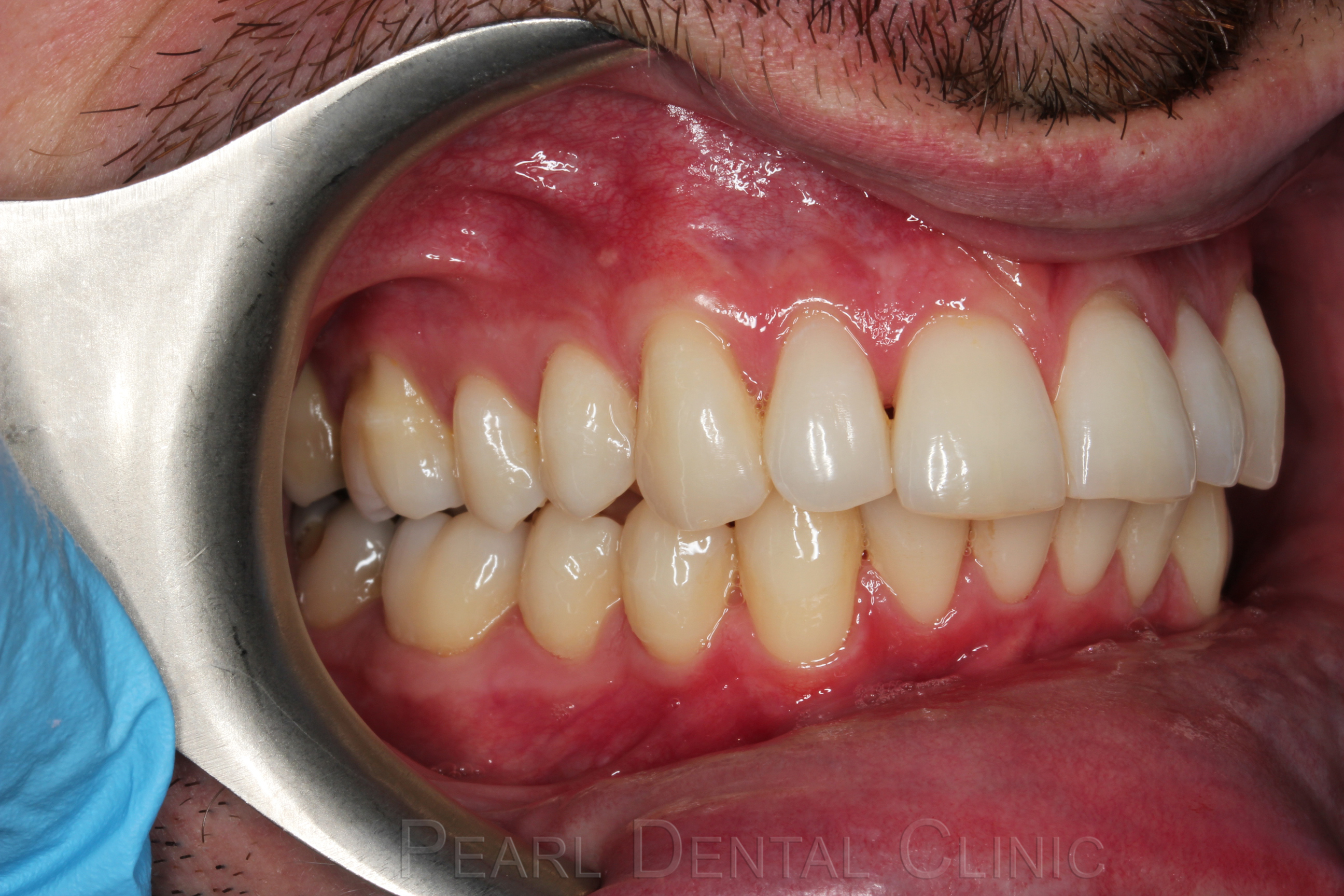 Invisalign buccal_right after
