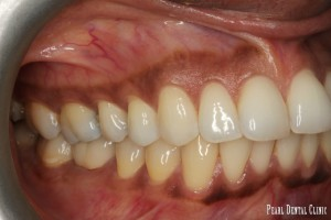 Invisalign buccal right before