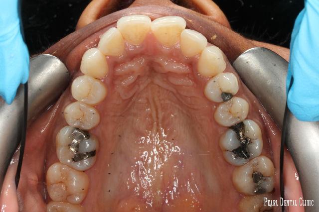 Invisalign occlusal mandibular before