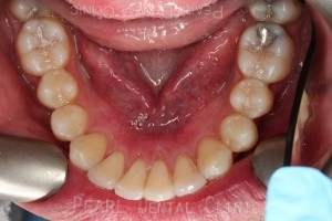 Invisalign-occlusal-mandibular_14-after