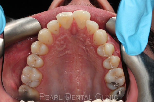 Invisalign occlusal mandibular_14 before