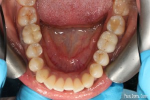 R_S_Invisalign occlusal maxillary before
