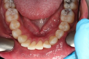 Invisalign occlusal maxillary_14 before