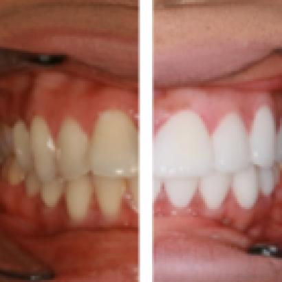 A Guide To Teeth Veneers