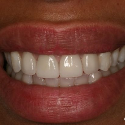 Cosmetic Teeth Veneers