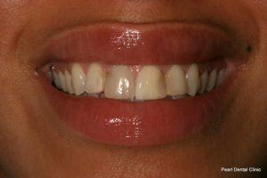 Cosmetic Teeth Veneers