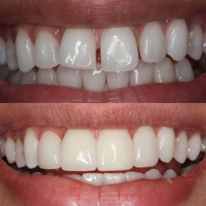 Dakota Johnson gets her tooth gap fixed