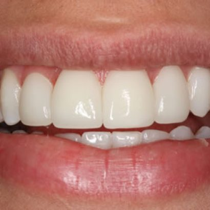 How Much Are Porcelain Veneers UK