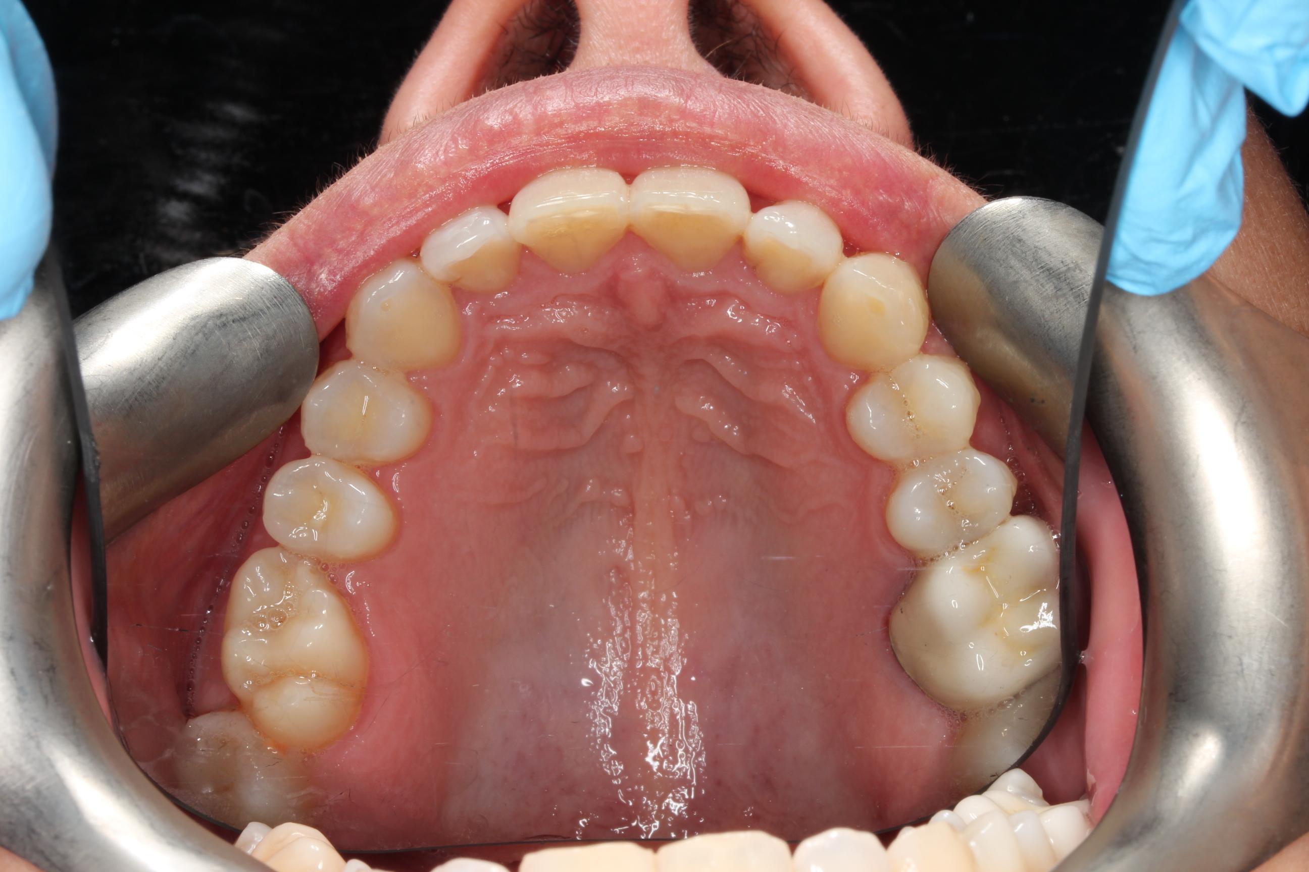 Invisalign Gallery 13 Invisalign Dentist Amp Invisalign