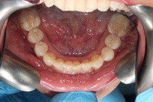 P_D_invisalign_occlusal_maxillary after