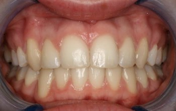 Six Month Smiles After Gallery - Case 2