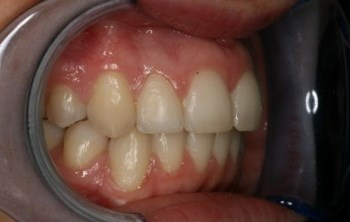 Six Month Smiles After Gallery - Overlap Straightened