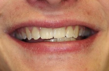 Six Month Smiles After Gallery - Teeth Straightened
