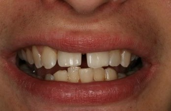 Six Month Smiles Before Gallery - Gaps between teeth