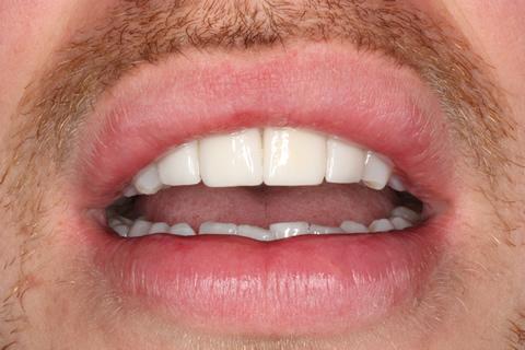 Smile Makeover After - Front teeth Emax veneers