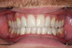 Smile Makeover After - Full arch Emax veneers teeth