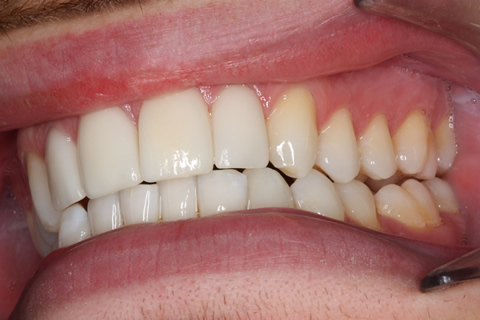 Smile Makeover After - Left full arch Emax veneers teeth