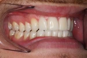 Smile Makeover After - Right full arch Emax veneers teeth