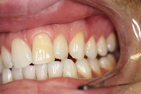 Smile Makeover Before After - Left full upper_lower arch teeth