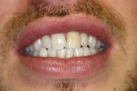 Smile Makeover Before - Front full upper_lower arch teeth