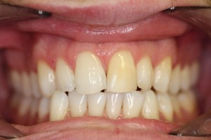 Smile Makeover Before - Full upper_lower arch teeth