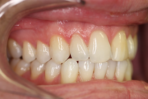Smile Makeover Before - Right full upper_lower arch teeth