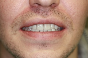 Stain Teeth Treatment After - Front top_bottom arch teeth Emax veneer