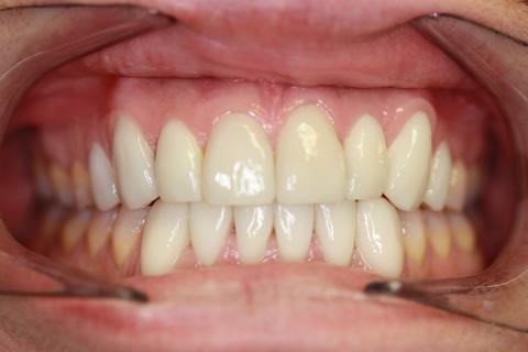 Stain Teeth Treatment After - Full top_bottom arch teeth Emax veneer