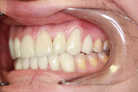 Stain Teeth Treatment After - Left full top_bottom arch teeth Emax veneer