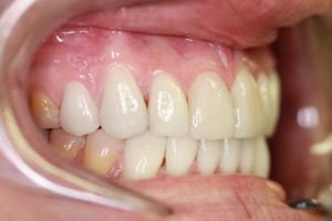 Stain Teeth Treatment After - Right full top_bottom arch teeth Emax veneer