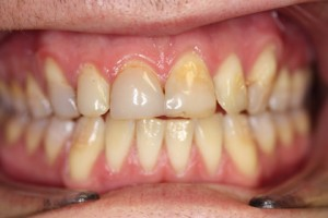 Stain Teeth Treatment Before - Full top_bottom arch teeth stain