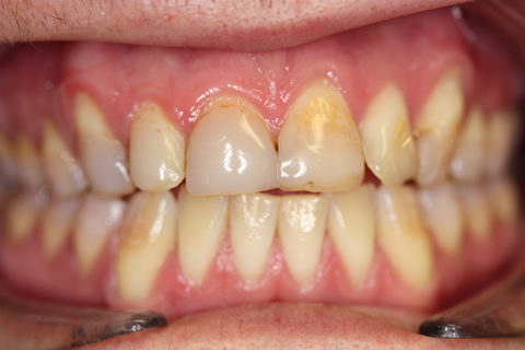 Stain Teeth Treatment Before - Full upper_lower arch teeth stain