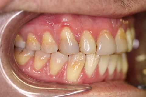 Stain Teeth Treatment Before - Left full upper_lower arch teeth stain