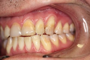 Stain Teeth Treatment Before - Right full upper_lower arch teeth stain