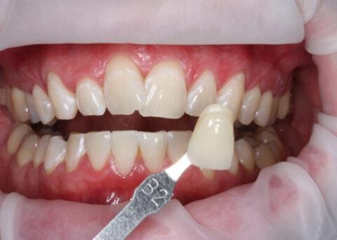 Teeth Whitening After - Teeth whitening_10.1