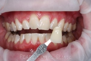 Teeth Whitening After - Teeth whitening_10.1