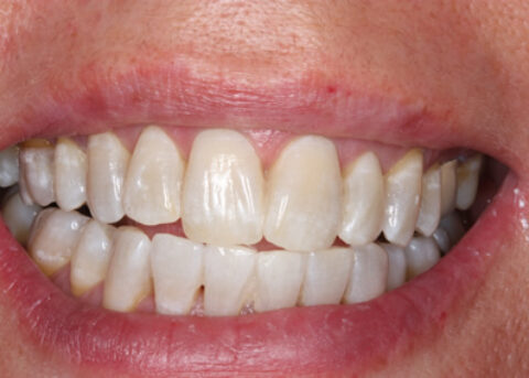Teeth Whitening After - Teeth whitening