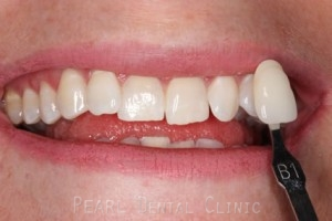 Teeth Whitening After - Teeth whitening