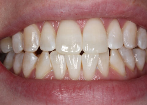 After Image - Teeth Whitening
