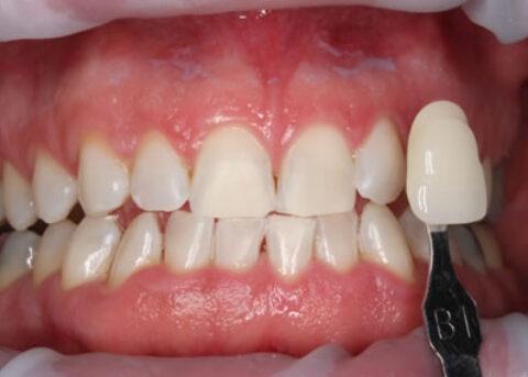 Teeth Whitening After - Teeth zoom whitening