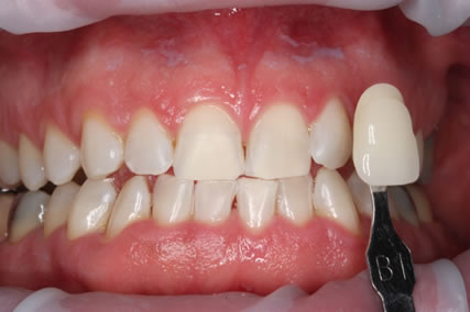 Teeth Whitening After - Teeth zoom whitening