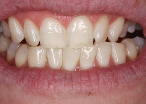 Teeth Whitening After - Zoom teeth whitening