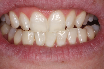 Teeth Whitening After - Zoom teeth whitening