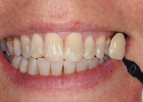 Teeth Whitening Before - Teeth whitening