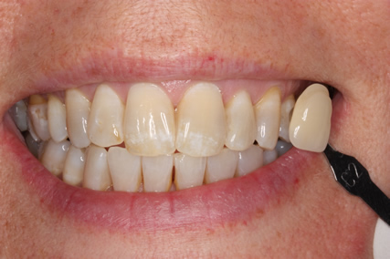 Teeth Whitening Before - Teeth whitening