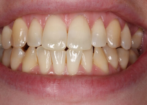 Before Image - Teeth Whitening